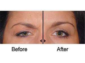 dysport eyebrow lift