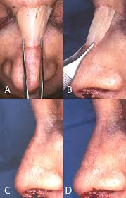 Surgical placement and design of an extended radix graft for rhinoplasty