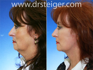 face-and-neck-lift-before-and-after