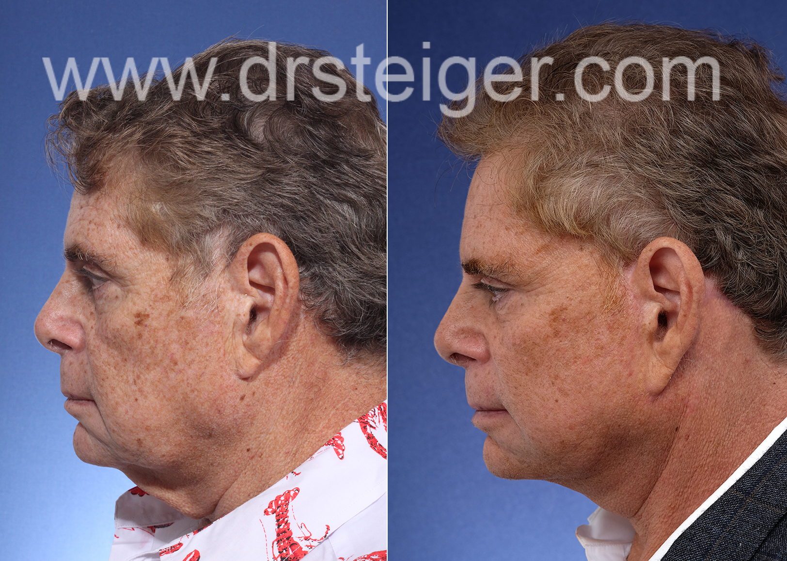 facelift and necklift in a man