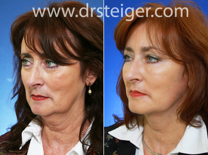Facelift Before and After Photos | Face Lift Pictures Boca
