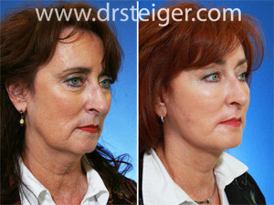 facelift-with-fat-grafting-photos