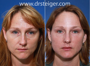 face fat grafting before and after