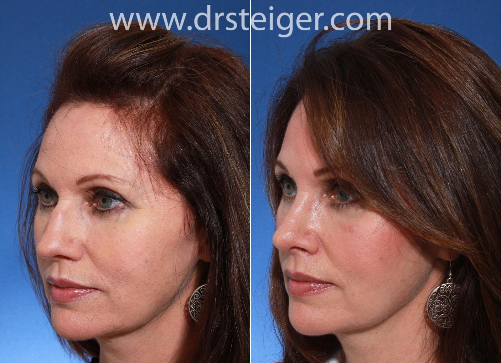 feminine-nose-natural | Steiger Facial Plastic Surgery
