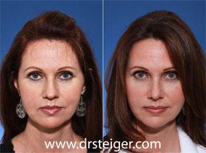 rhinoplasty for a more feminine nose