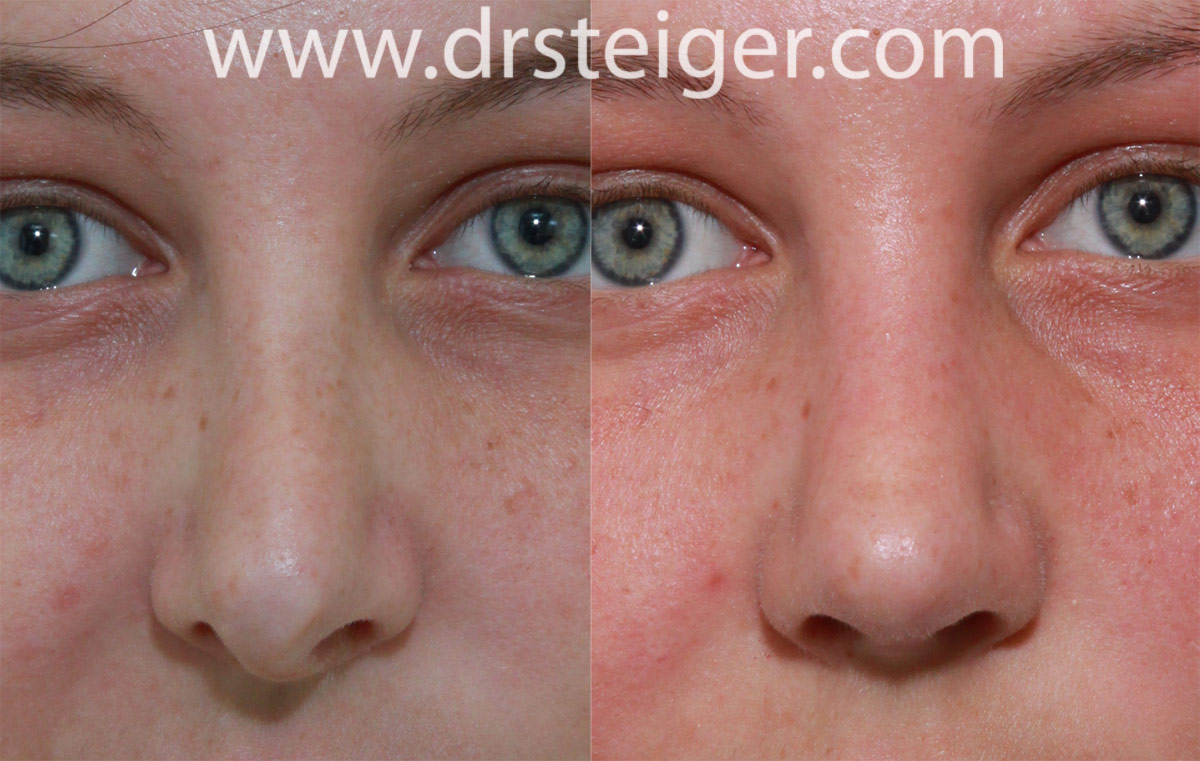Revision Rhinoplasty Before and After Photos | Steiger
