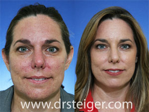 fractional-CO2-acne-scars-before-and-after