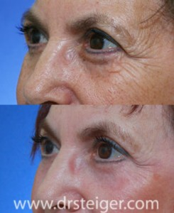 fractional-CO2-before-after