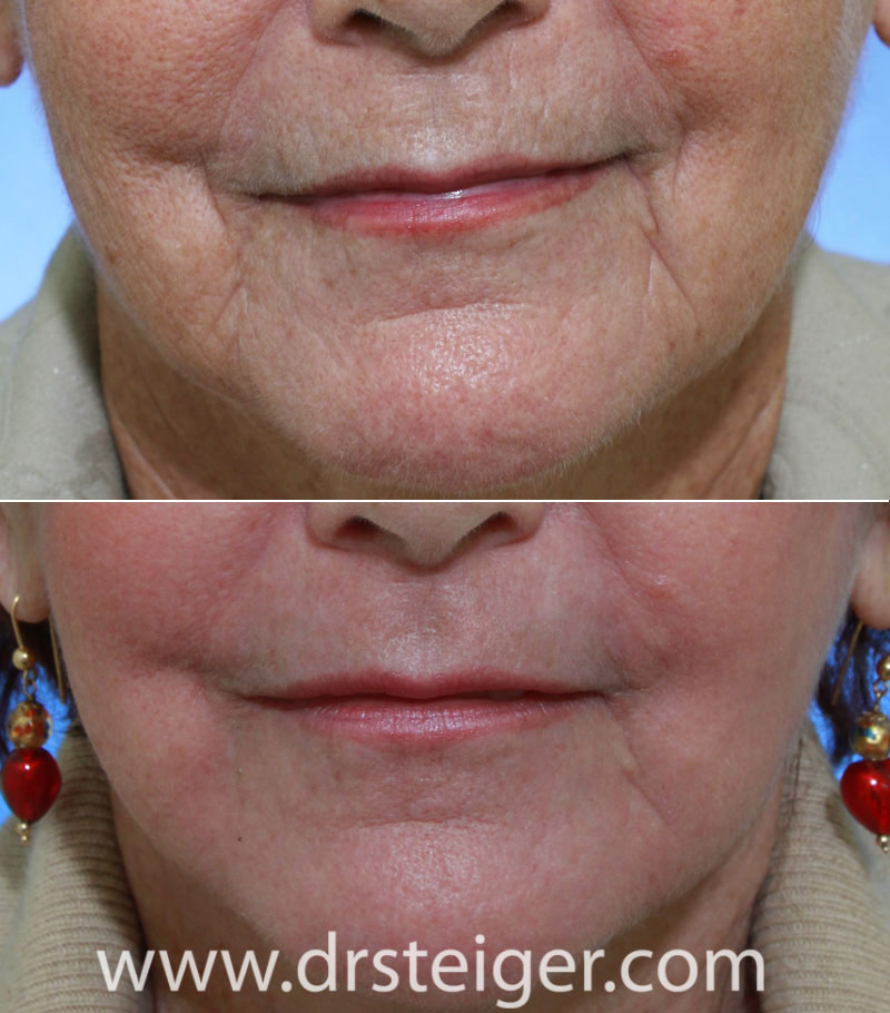 Fractional CO2 Laser Before and After Photos | Steiger