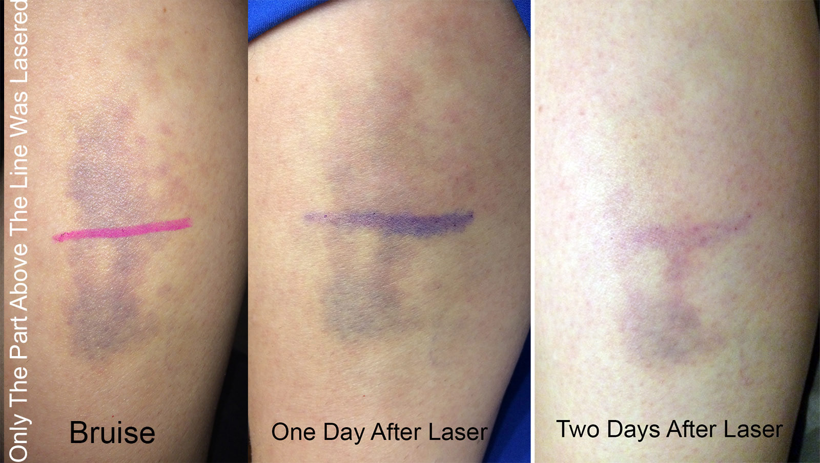 Laser That Gets Rid of Bruises