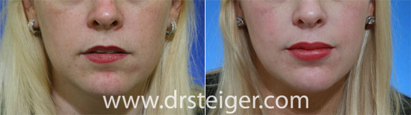 lip-augmentation-before-and-after