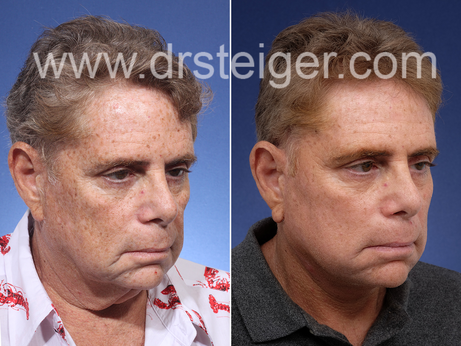 Facelift Man South Florida