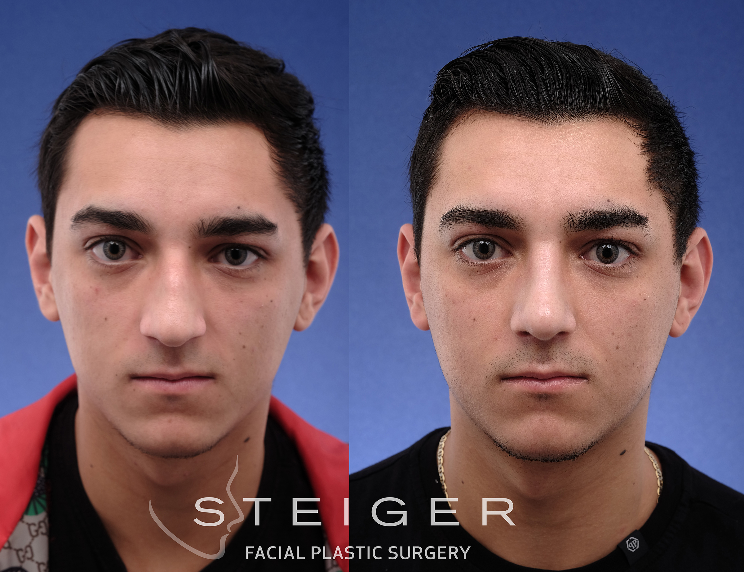 rhinoplasty in a teenager