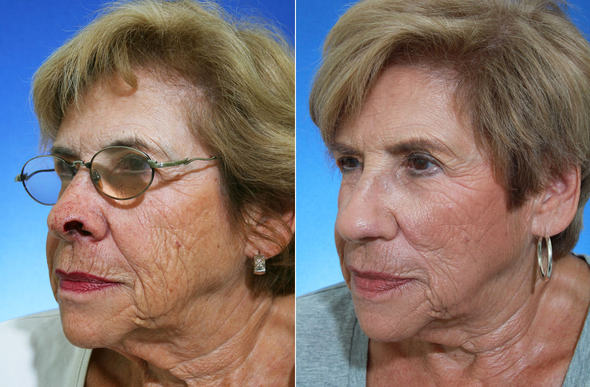 MOHS Surgery Reconstruction Before and After Photos