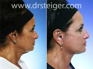 neck-lift-photos