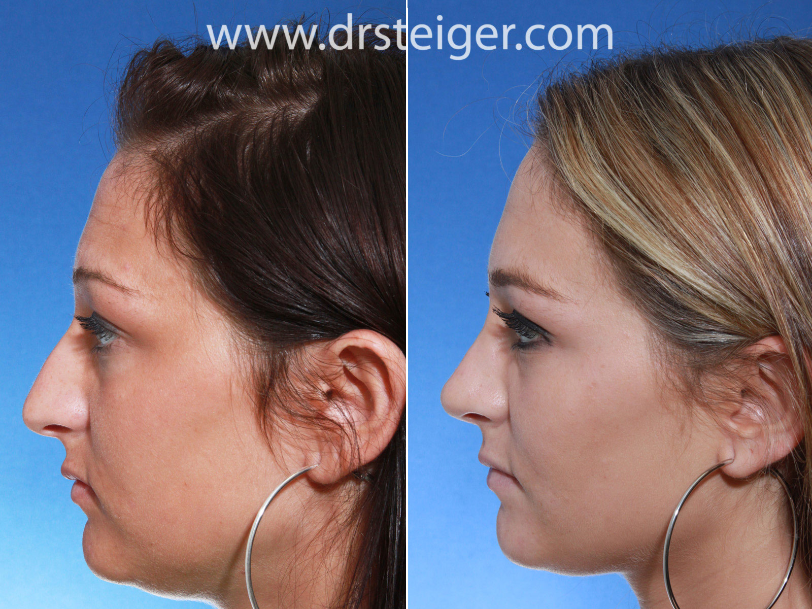 Rhinoplasty Before and After Photos | Steiger Facial Plastic