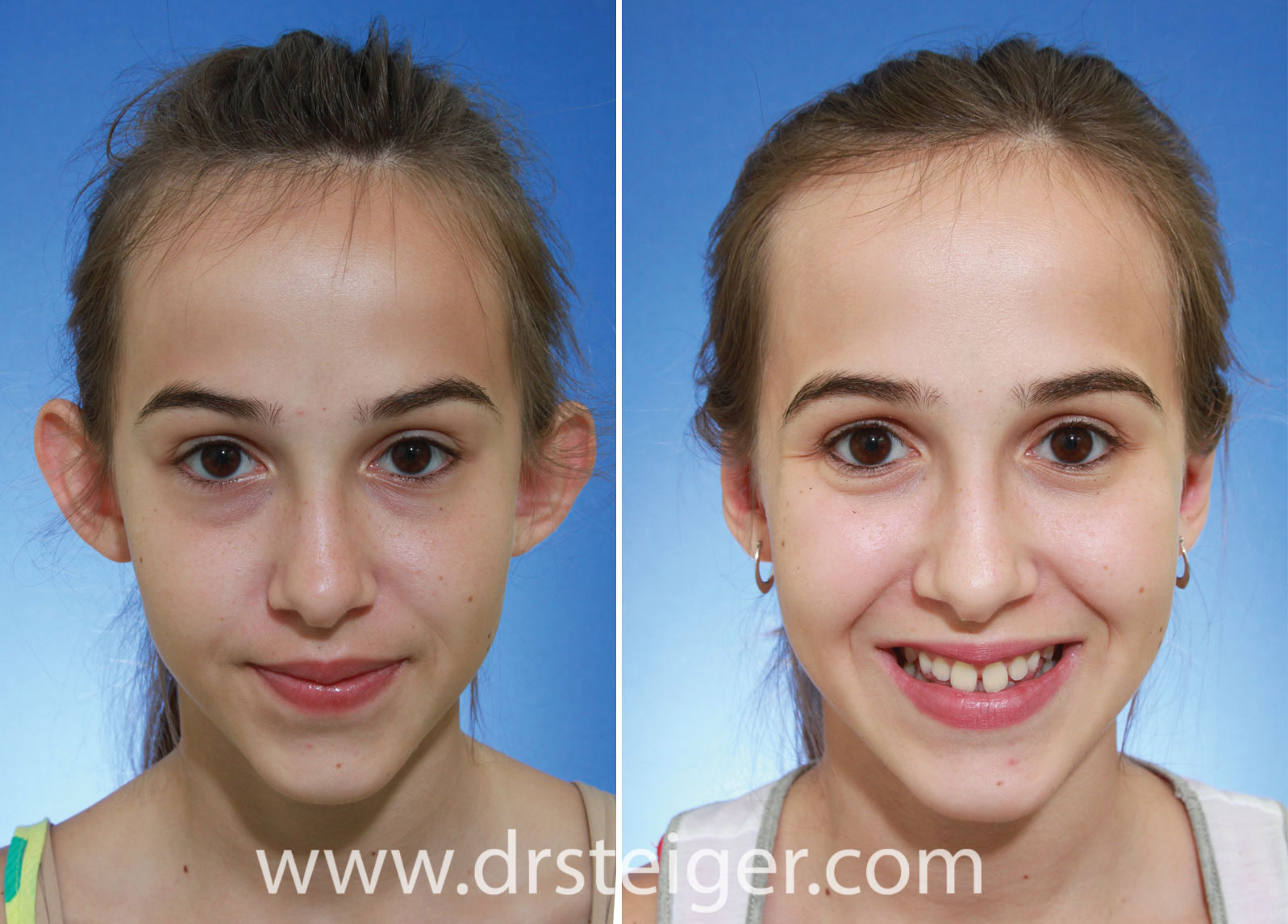 Otoplasty Before And After Photos Ear Pinning Boca Raton