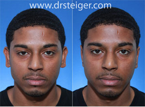 male otoplasty before and after photo