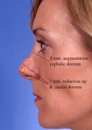 Nasal augmentation with an artificial nasal implant.