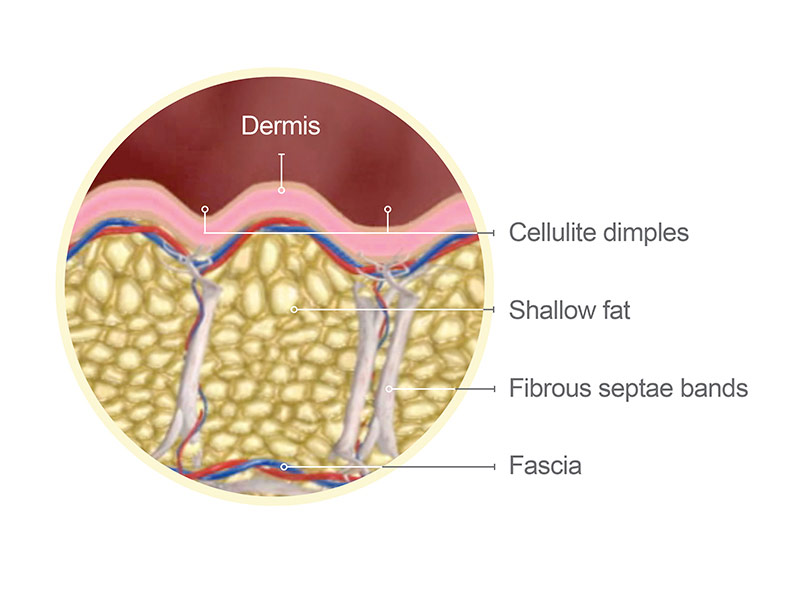 cellulite treatment in palm beach