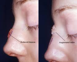 Preoperative photo before augmentation with reduction rhinoplasty.