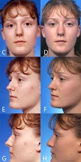 Before and after photo of a reduction rhinoplasty with augmentation and radix graft.