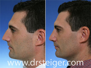 Rhinoplasty Man Before and After Photos