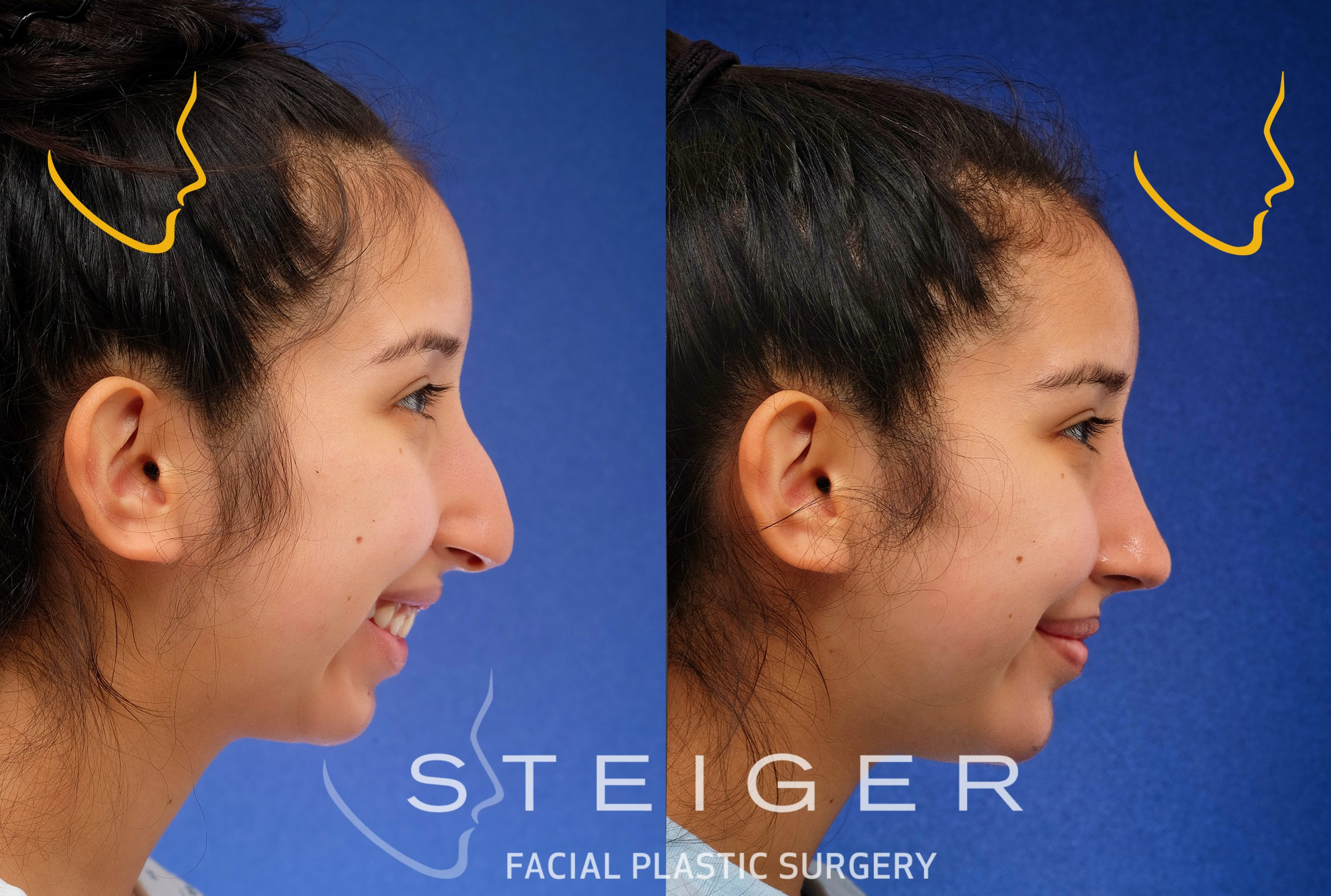 Rhinoplasty for a plunging nose when smiling