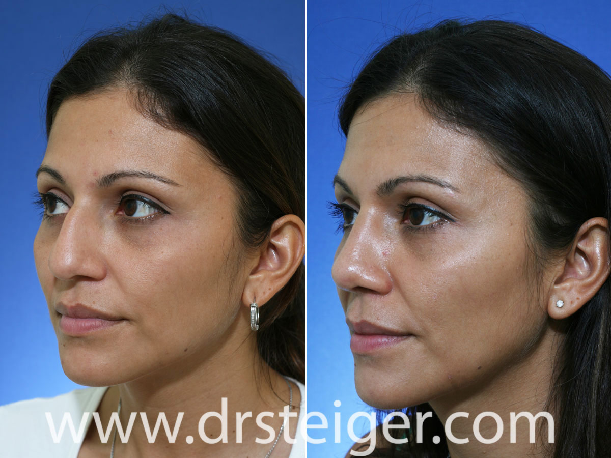 How To Get A Higher Nose Bridge Naturally