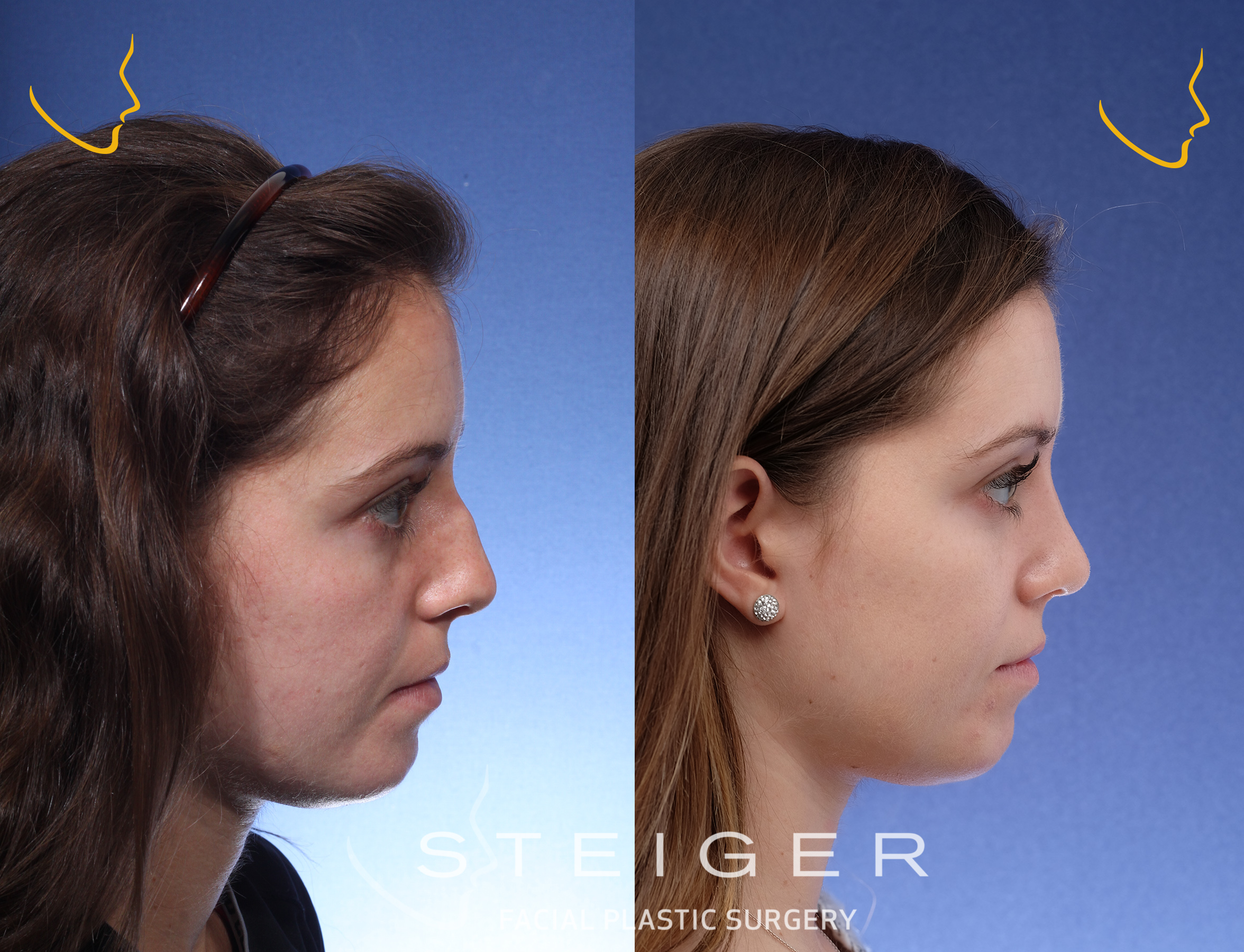 beautiful profile after rhinoplasty