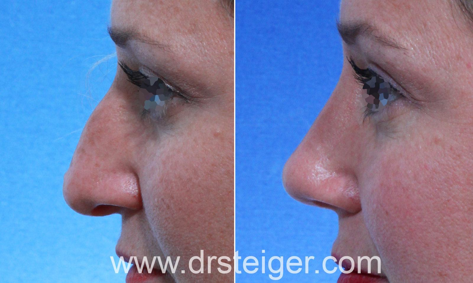 Woman Rhinoplasty Drooping Tip