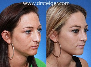 rhinoplasty in a female