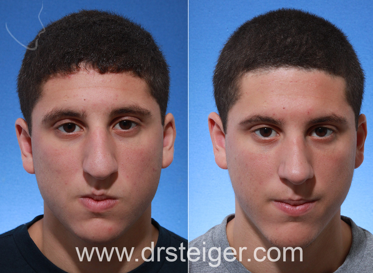 rhinoplasty with chin implant in a man