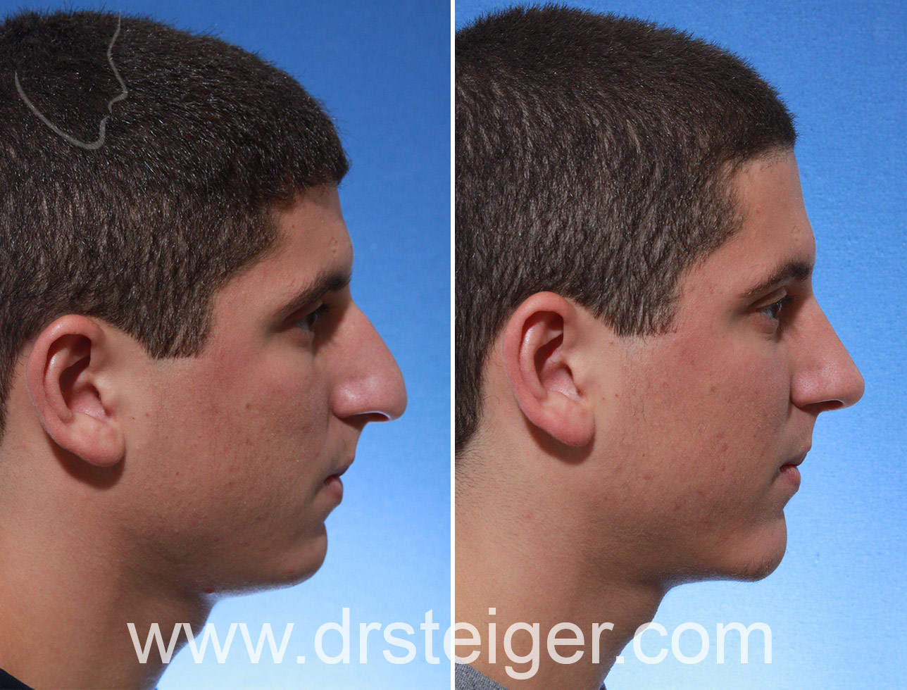 rhinoplasty in a man with a hook nose