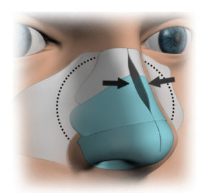 Will you have to break my nose during rhinoplasty?