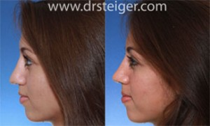 rhinoplasty to lift the tip