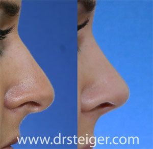 rhinoplasty of the nasal tip