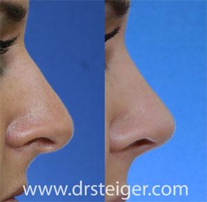 rhinoplasty of the nasal tip