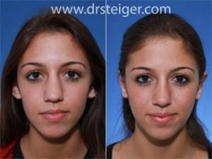 rhinoplasty to narrow a wide nose
