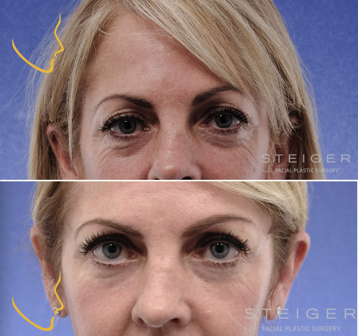 software to lift the brows and tighten skin