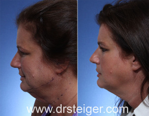 neck lift, non-surgical, thermitight, neck, boca raton, south florida