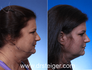 Boca Raton, thermitight, thermiRF, non-surgical facelift