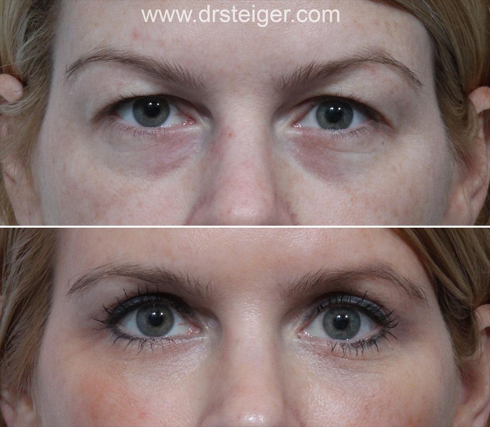 Best Eyelid Surgery