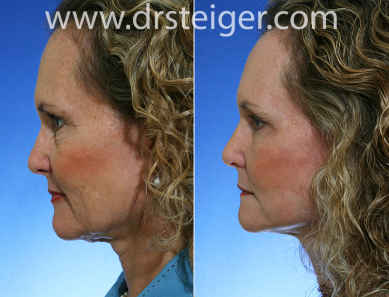Facelift Before and After Photos   Face Lift Pictures Boca Raton